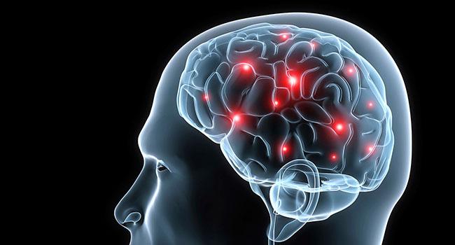 【認識疾病】什麼是癲癇症?