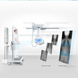 數碼X光檢查