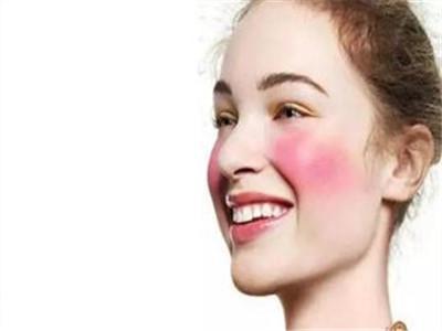 皮膚過敏癥狀有哪些?