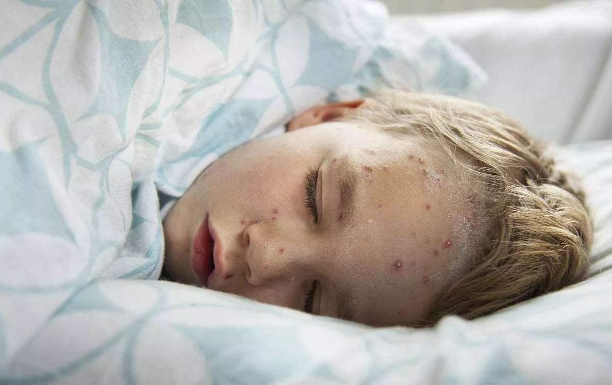 為什麼打了水痘疫苗也會出現帶狀皰疹?