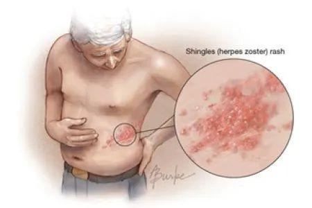 生蛇會同時生水痘嗎?這種比生孩子還痛的疾病正折磨你的父母