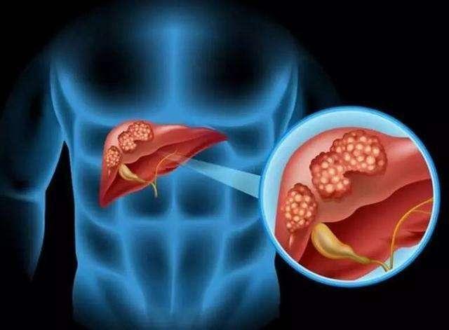 乙肝的危害有多大?