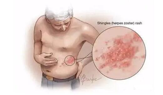 生蛇皮膚病是怎樣引起的?