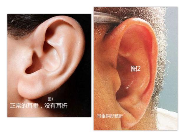 耳垂摺痕與冠心病真的有關聯嗎?