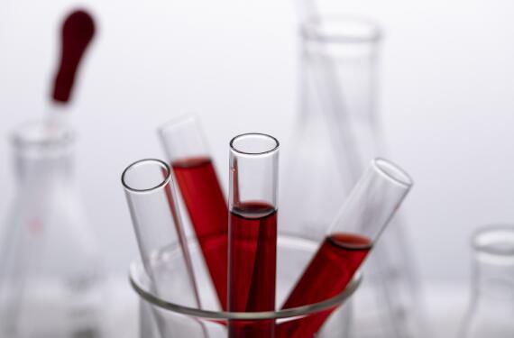 地貧基因檢測抽血要空腹嗎?