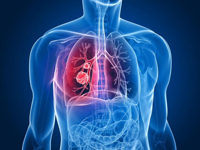 冬季常發疾病一:心血管疾病