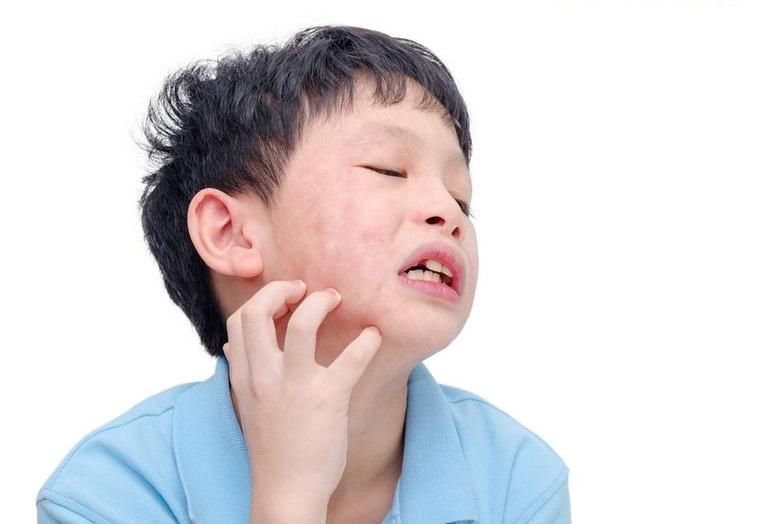 皮膚過敏癢又痛 免疫失衡怎麼辦?