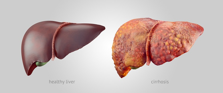罹脂肪肝 改變生活習慣會變好